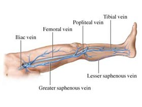 Varicose Veins Development