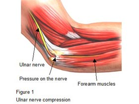 Cubital Tunnel Syndrome and Poor Circulation